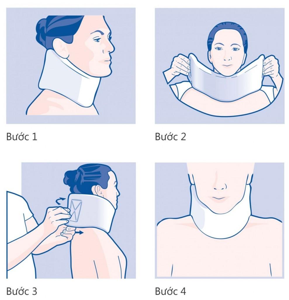Cervical Collar - Huong dan mang